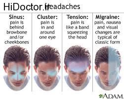 نقاط مختلف سر و صورت در مواجهه با انواع سر درد ها
