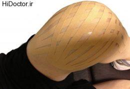 9 درمان خانگی برای تورم زانو