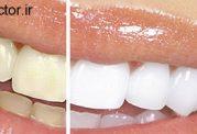 ممنوعیت غذایی برای سفیدی دندان