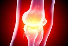 آیا التهاب مفاصل زانو با استامینوفن کاهش می یابد؟