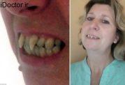 زنی با دندان های ترسناک