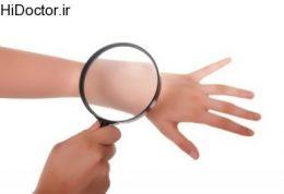 چگونه از بیماری پوستی «پیسی» پیشگیری کنیم؟