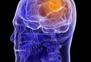 استفاده زیاد از موبایل و ابتلا به تومور مغزی