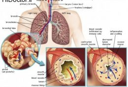 با این علائم شما مبتلا به آسم هستید