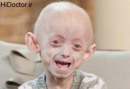 سندرم نادر پیری زودرس در این دختر بچه