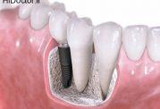 توصیه های مهم دندانپزشکان راجع به ایمپلنت