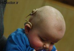 اختلال شنوایی شدید