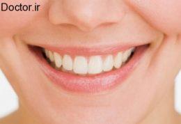 سفید بودن و سلامتی دندان