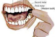 پوسیدگی دندان جوانان