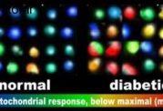 متعادل نبودن بیوانرژتیک در سلولهای بتا و مبتلا  به دیابت نوع 2