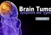 با این راهها به تومور مغزی دچار نمی شوید