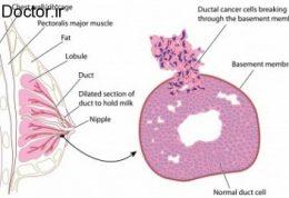 آشنایی با انواع کیست های سینه و درمان هریک