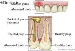 با آبسه دندان چه کنیم
