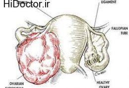 علائم و نشانه های سرطان در تخمدان