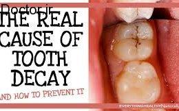 تاثیرگذارترین عوامل در پوسیدگی دندان