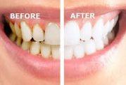 عامل ایجاد جرم دندان