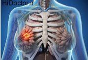 کوچک ترشدن کیست سینه با این روش ها
