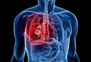 همه علائم و نشانه های وجود سرطان در ریه