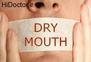 خشکی دهان را با چه مواردی می توان تشخیص داد