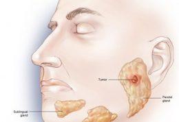 اطلاعاتی در مورد انواع  تومور در غدد بزاقی