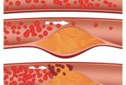 مواد غذایی که باعث کاهش کلسترول خون می شوند