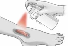 اسپری که زخم پای دیابتی ها را درمان می کند