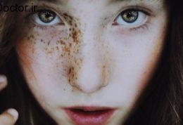 چگونه لک صورت را به آسانی از بین ببریم؟