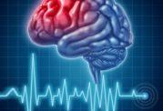 سکته مغزی تهدیدی برای همه سنین
