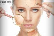 چگونه راهی را برای پیشگیری از پیری پوست پیدا کنیم؟