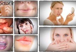 مراقبت و پیشگیری از آفت های دهانی