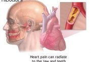 عفونت دندانی با این امراض مرتبط است