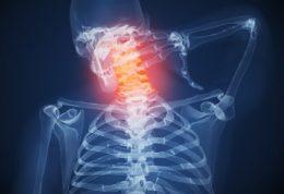 در مورد سردرد از نوع گردنی