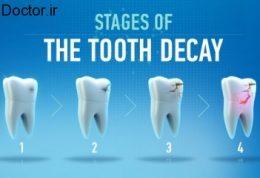 رعایت نکات مهم درباره پوسیدگی دندان