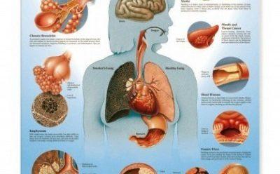خطر دخانیات برای معده