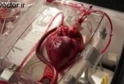 تپش قلب به مدت طولانی خارج از بدن