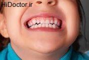 مراقبت از دندان های کودک با این شرایط
