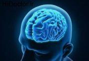 شناخت انواع مشکلات مغزی سالمندان