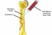 پیوند مغز استخوان برای نجات بیماران سرطانی