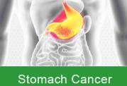 سرطان مرگبار در سیستم گوارش