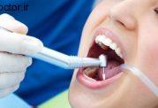 استفاده از تکنولوژی نانو برای دندانپزشکی