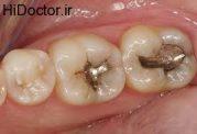 تاثیر نامطلوب پر کردن دندان  بر دیگر دندان ها