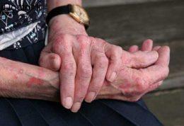 اختلالات پوستی در سنین بالا