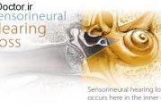 بی حسی عصبی در سیستم شنوایی