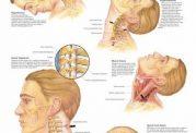 توصیه هایی برای عارضه دیسک در گردن