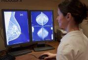 زمان مناسب برای انجام ماموگرافی