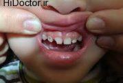 جالب ترین موارد تخریب کننده دندان
