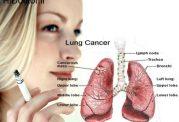 خانم ها حواستان به سرطان ریه باشد!