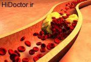 اهمیت تنظیم بودن چربی خون