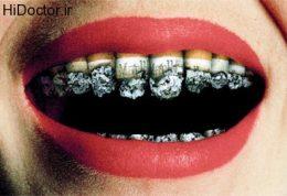 تهدید سلامت دندان ها با توتون و تنباکو