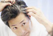 کندن موی سفید از ریشه